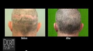 Artas Robotic Hair Transplant System