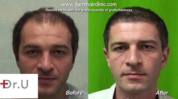 Hair Transplant Before And After 10000 Grafts