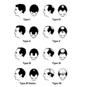 Botox as a Hair Loss Cure