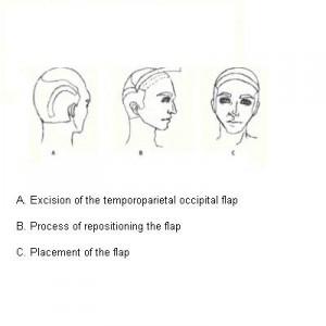 Hair Restoration and Temporoparieto Occipital Flap Surgery