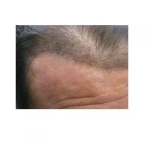 Hair Restoration with Temporoparieto