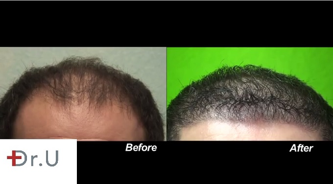 Restoration of Patient's Hairline| Before & After Photos