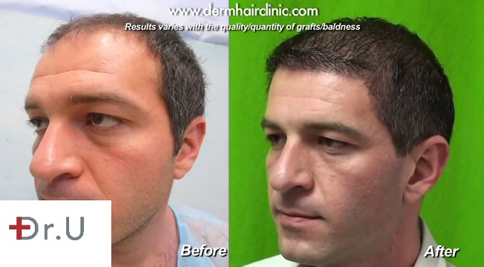 UGraft FUE hair transplant for Level 6 baldness | Before & After - Three Quarters View of Face