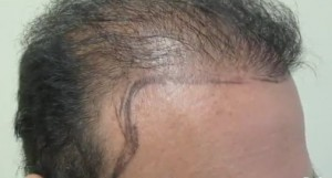 new hairline and temples - hair transplant surgery