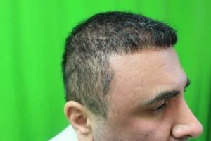 body hair transplant outcome