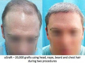 Body hair transplant gave excellent results in this patient