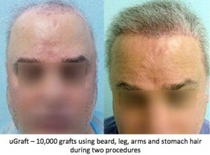 before and after images of body hair transplant procedure performed by Dr. Umar