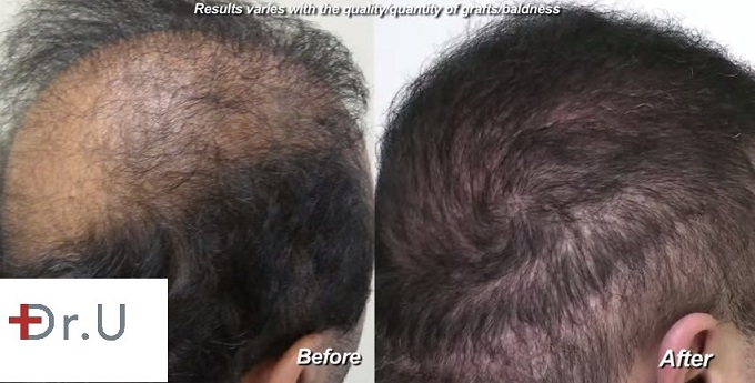 Repairing Crown Hair Loss & Scars| 9000  BHT Grafts - Before and After