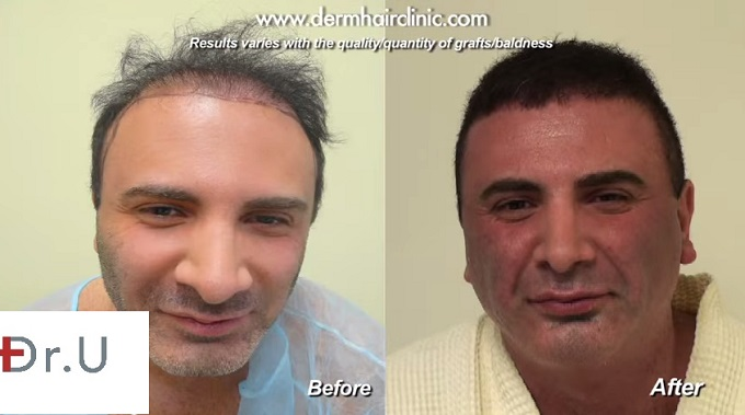 Patient Before & After| 9000 BHT Grafts