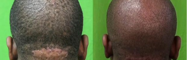 Patient before and after his AKN removal