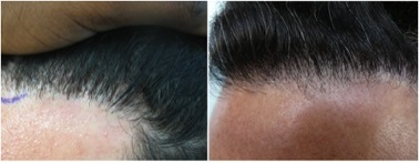 FUE Hair Transplant Cost 3