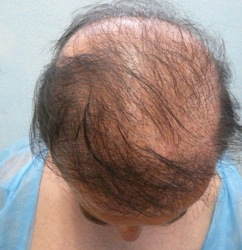 FUE Hair Transplant Cost 5