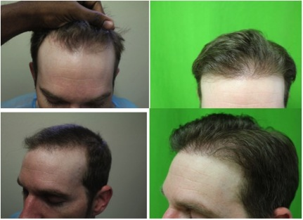FUE Hair Transplant Cost 6