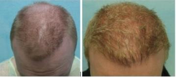 Beard Hair Transplant Cost  best hair transplant investment