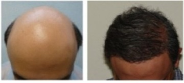 Beard Hair Transplant Cost  large scale surgery  severe baldness