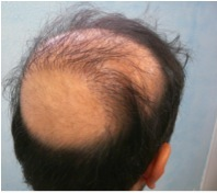 Best FUE Hair Transplant Doctor in the World 1