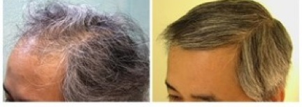 best FUE hair transplant doctor in the world 4