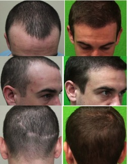 Best Hair Transplant Doctor In The World Dermhair Clinic