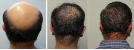 Propecia less body hair