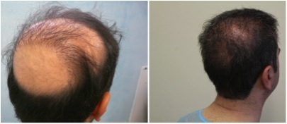 Crown Hair Transplant |Successful Repair Results