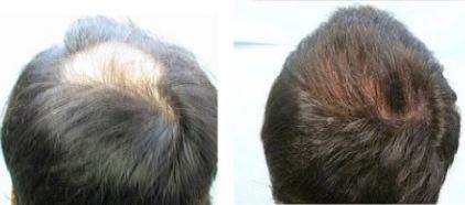 Crown Hair Restoration |