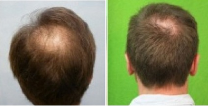 Crown Hair Restoration |improving density