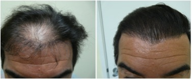 Hairline Repair Dermhair Clinic Los Angeles 1 310 318 1500