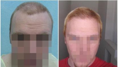 Hairline Transplant |Repair Surgery Through FUE