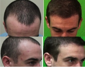 Does propecia regrow receding hairline