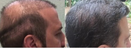 Hair Transplant Clinic in Los Angeles, CA