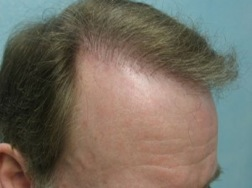 before Temple Hair Restoration and repair by the UGraft FUE
