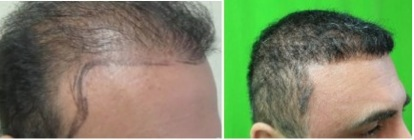 Temple Hair Restoration by Dr U |new results on patient