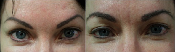 eyebrow hair transplant patient- before and after surgery