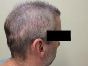 hair restoration-007