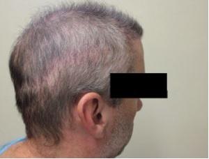 Strip Scar on Patient