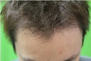 FUE hairline results for Asian Patient