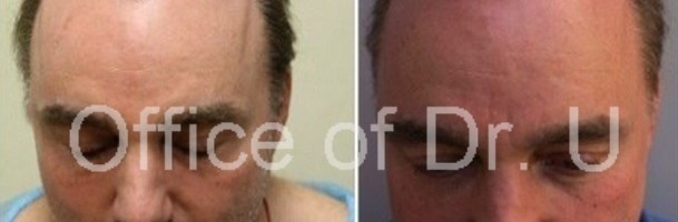 Hair Repair Patient|Before & After 5000 Grafts