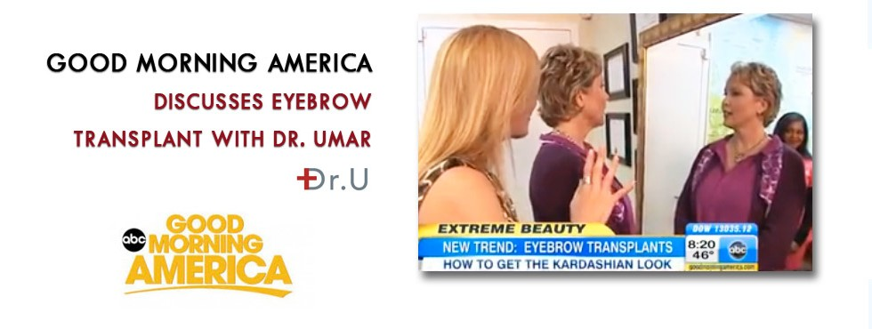 Dr. U's eyebrow transplant patient featured on Good Morning Americ