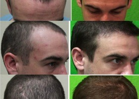 Unwanted Strip Scar| Hair Transplant Repair Surgery| Patient Photos| Before and After