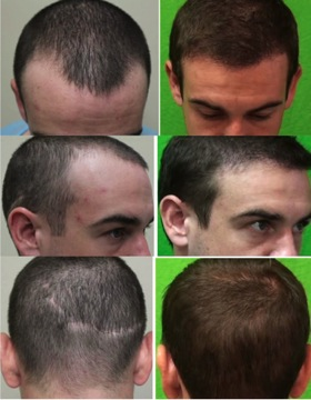 FUE hair restoration for younger patients: Results on younger patient