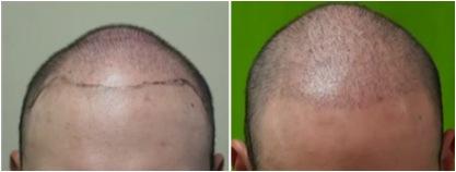 FUE hair restoration1