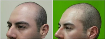 Follicular Unit Extraction | Diffuse Hairline and Coverage