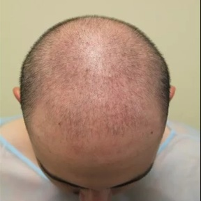 Patient With Sparse Coverage|Before FUE Hair Transplant