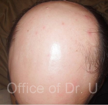Norwood 7 extreme baldness| Patient before his procedure