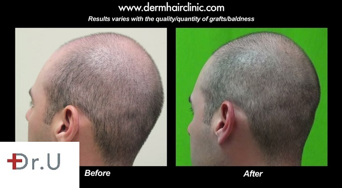 Bald Spot on FUE Patient's Head| Before and After