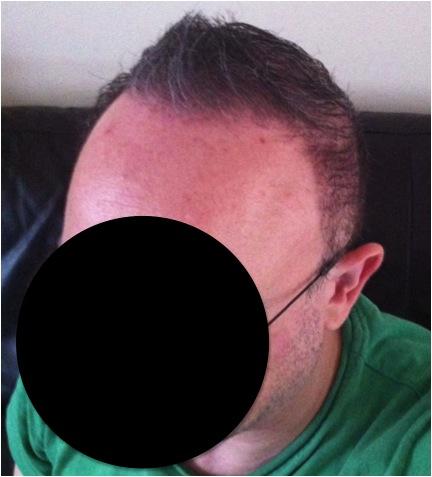 international hair loss forum greffe de cheveux barbe utilisation greffes dr umar. Black Bedroom Furniture Sets. Home Design Ideas