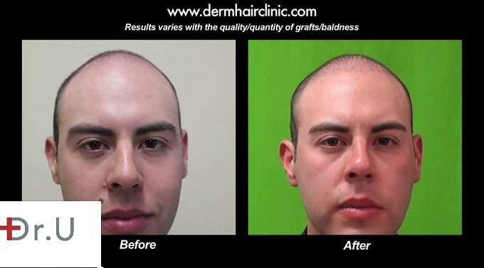 Full Face View of Young Male FUE Patient| Before and After Surgery