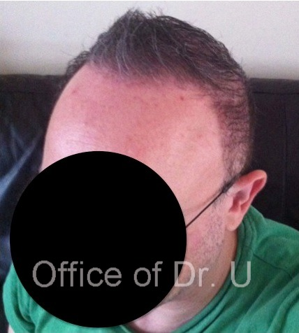 View of Patient's Frontal Scalp| Body Hair Transplant For Severe Baldness