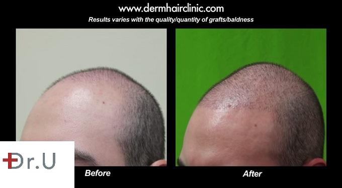 FUE Hairline Advancement| New Hairline Placement