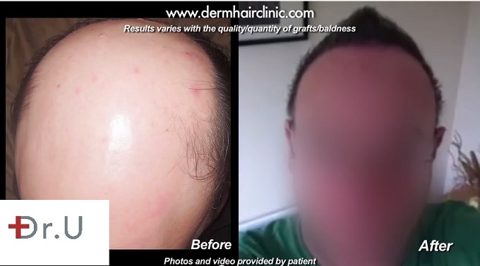 Front View of Patient's Head| Before and After Hair Transplant For Severe Baldness